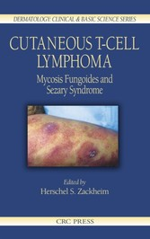 Cutaneous T-Cell Lymphoma - Mycosis Fungoides and Sezary Syndrome