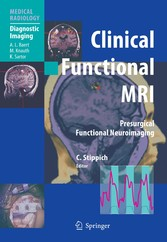 Clinical Functional MRI - Presurgical Functional Neuroimaging